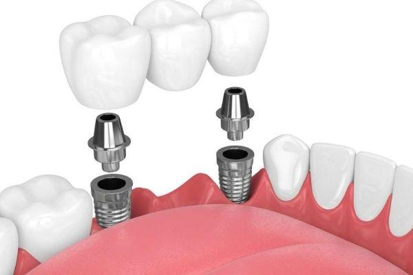 Implant dentaire | Centre dentaire Ville-Marie (1)